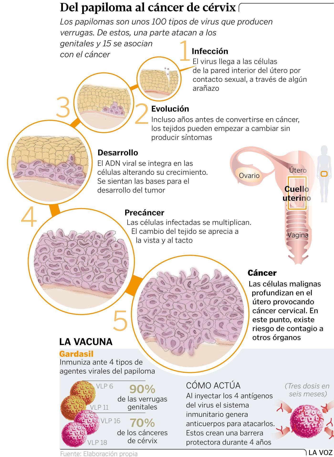 el papiloma humano produce cancer de utero