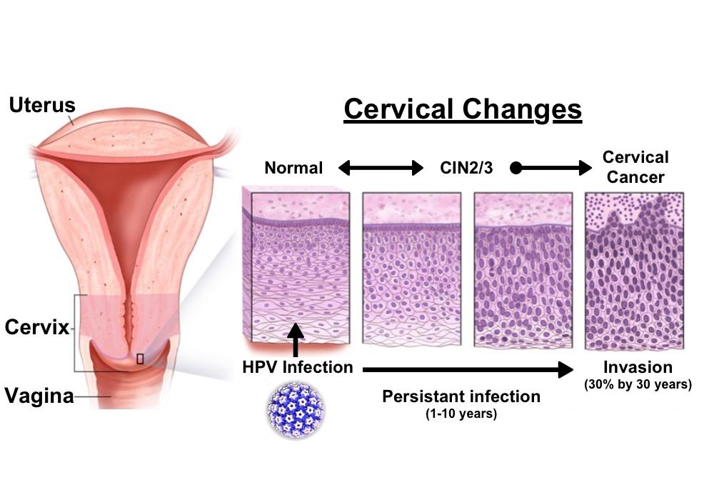 human papillomavirus cervical lesion