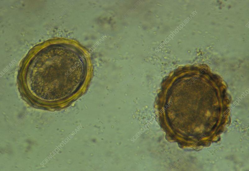 parasita ascaris lumbricoides papillomavirus feet