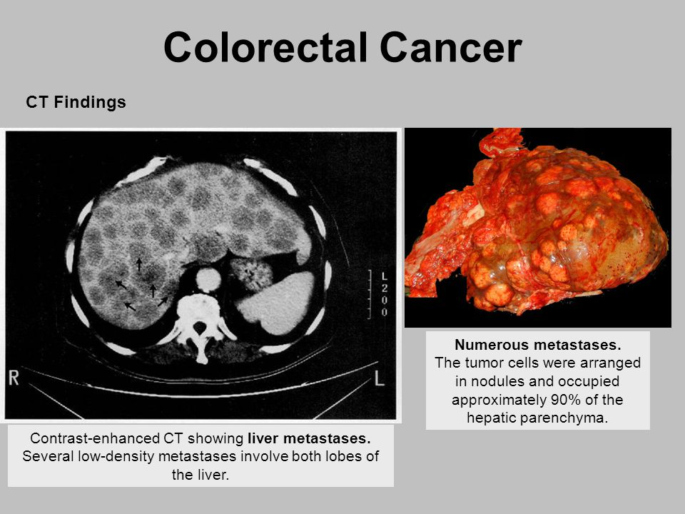 colorectal cancer hepatic metastases papilloma definition in medical terms