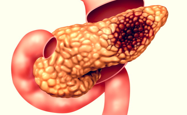 cancerul bronhopulmonar cauze