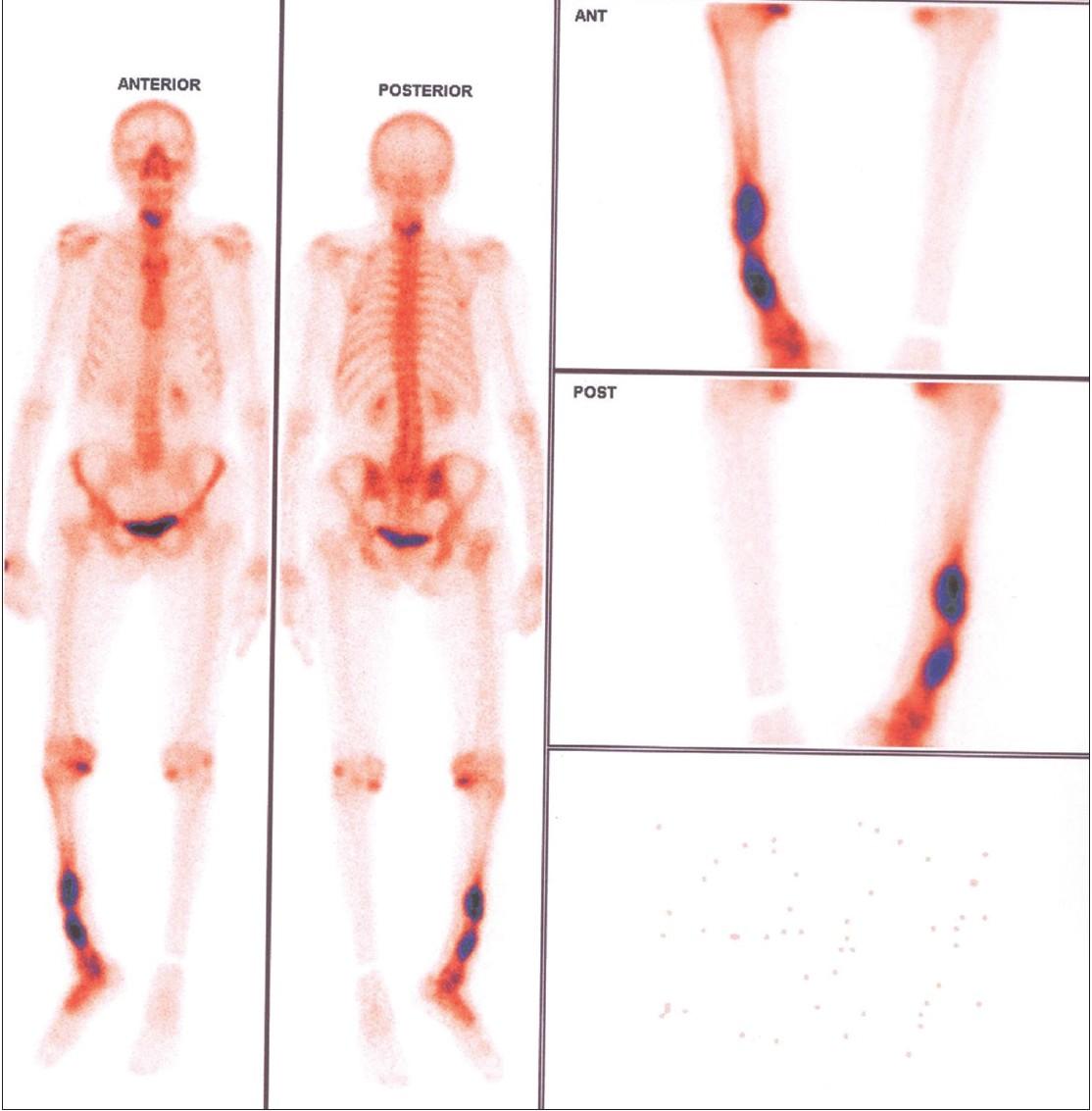 endometrial cancer metastasis to bone