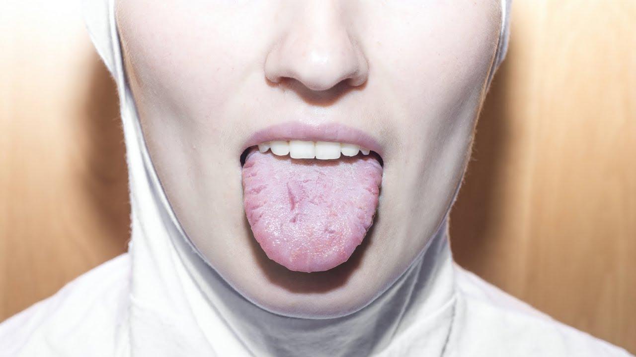 papillomavirus salive hoe loop je hpv virus op