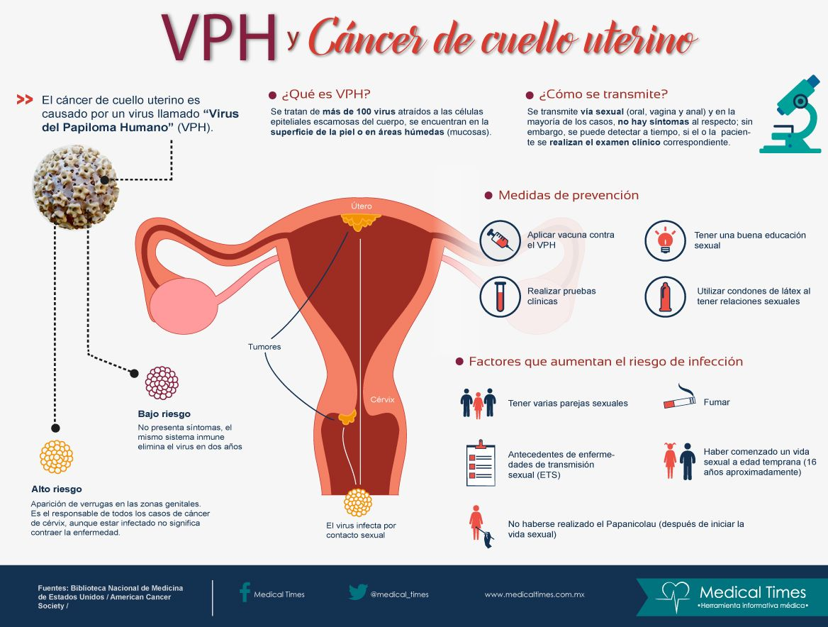 virus papiloma humano y cancer