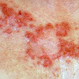 herpes hpv que es parasito oxiuros en ninos