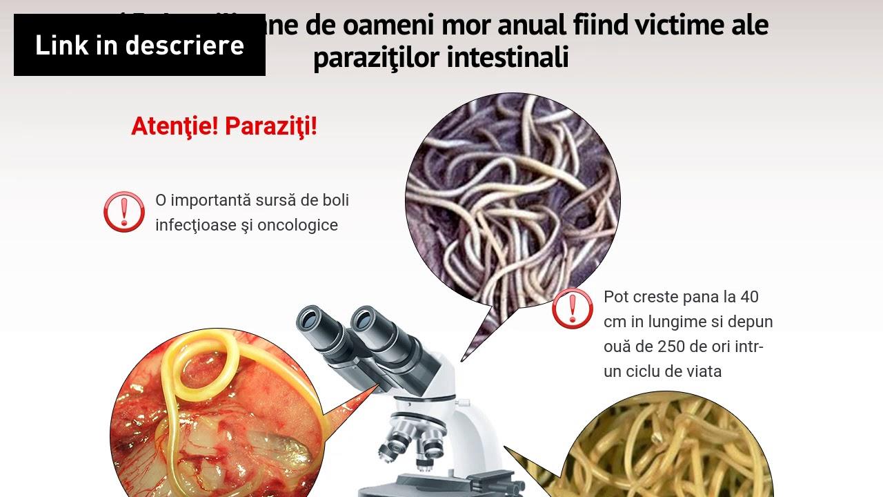 Paraziţii intestinali, deparazitare şi detoxifiere cu produse naturale Plantextrakt