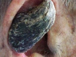 neuroendocrine cancer metastasis