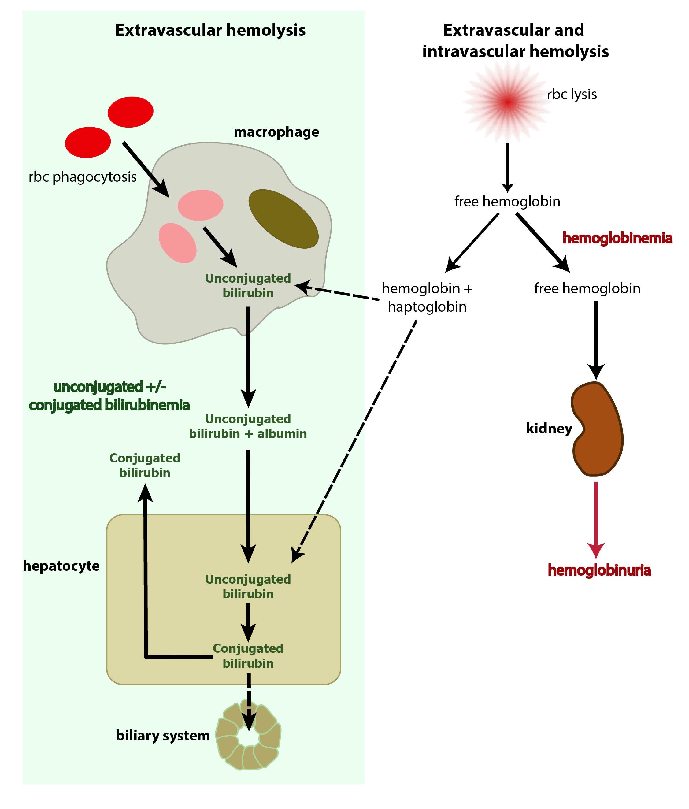 anemia jaundice