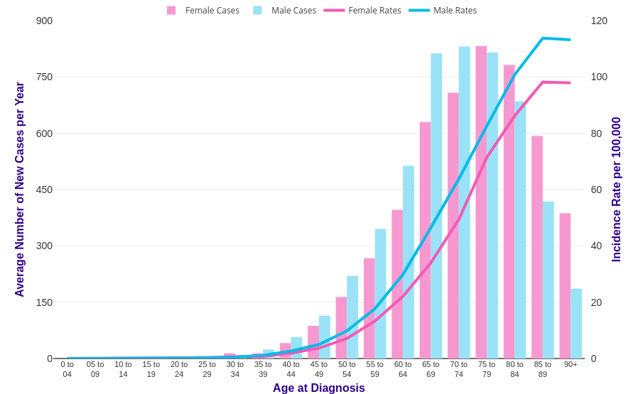 pancreatic cancer age range