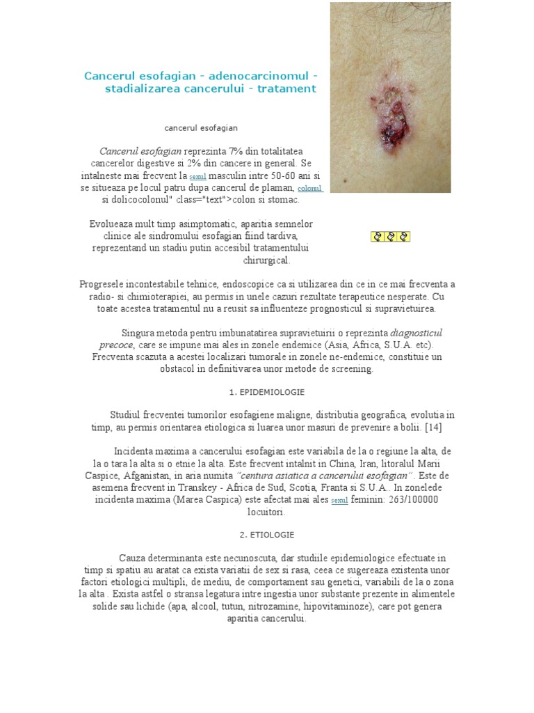 cancerul esofagian tratament cancerul laringelui