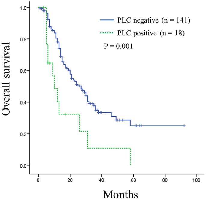 pancreatic cancer peritoneal washings