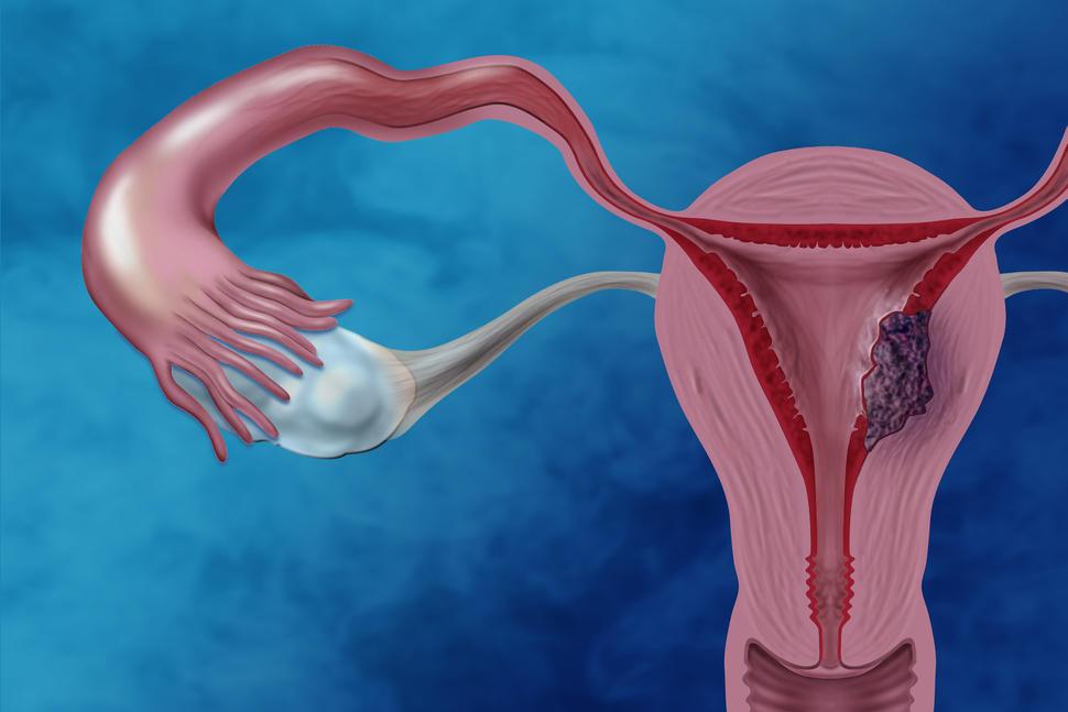 endometrial cancer radiation therapy papillomavirus lesions treatment