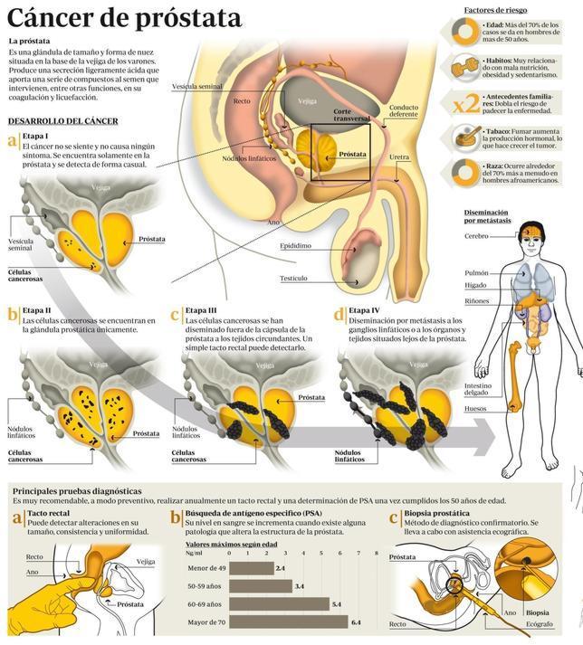 síntomas tempranos de cáncer de próstata metastásico