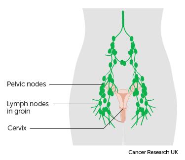 stages of hpv cervical cancer