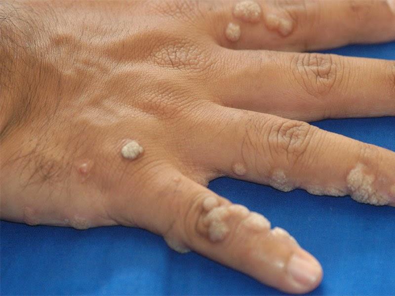 warts and skin cancer