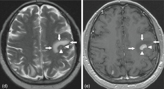 gastric cancer brain metastases
