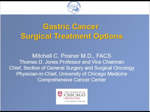 gastric cancer osmosis
