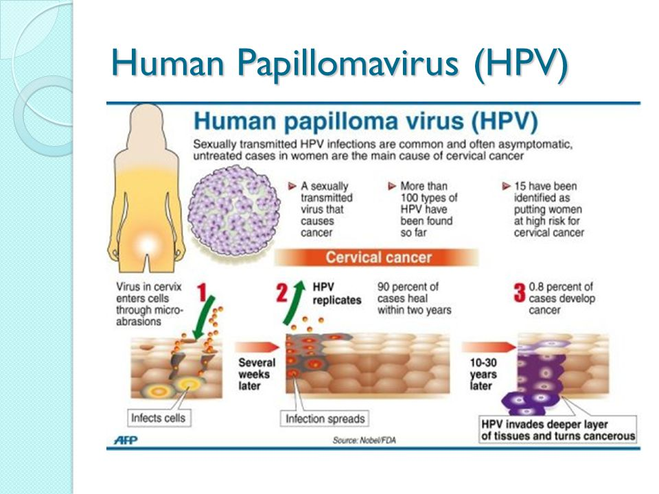 hpv and cervical cancer powerpoint presentation