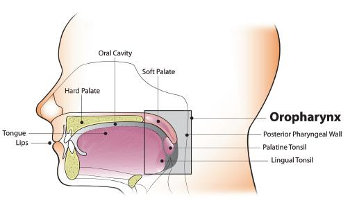 hpv-associated oropharyngeal cancer symptoms