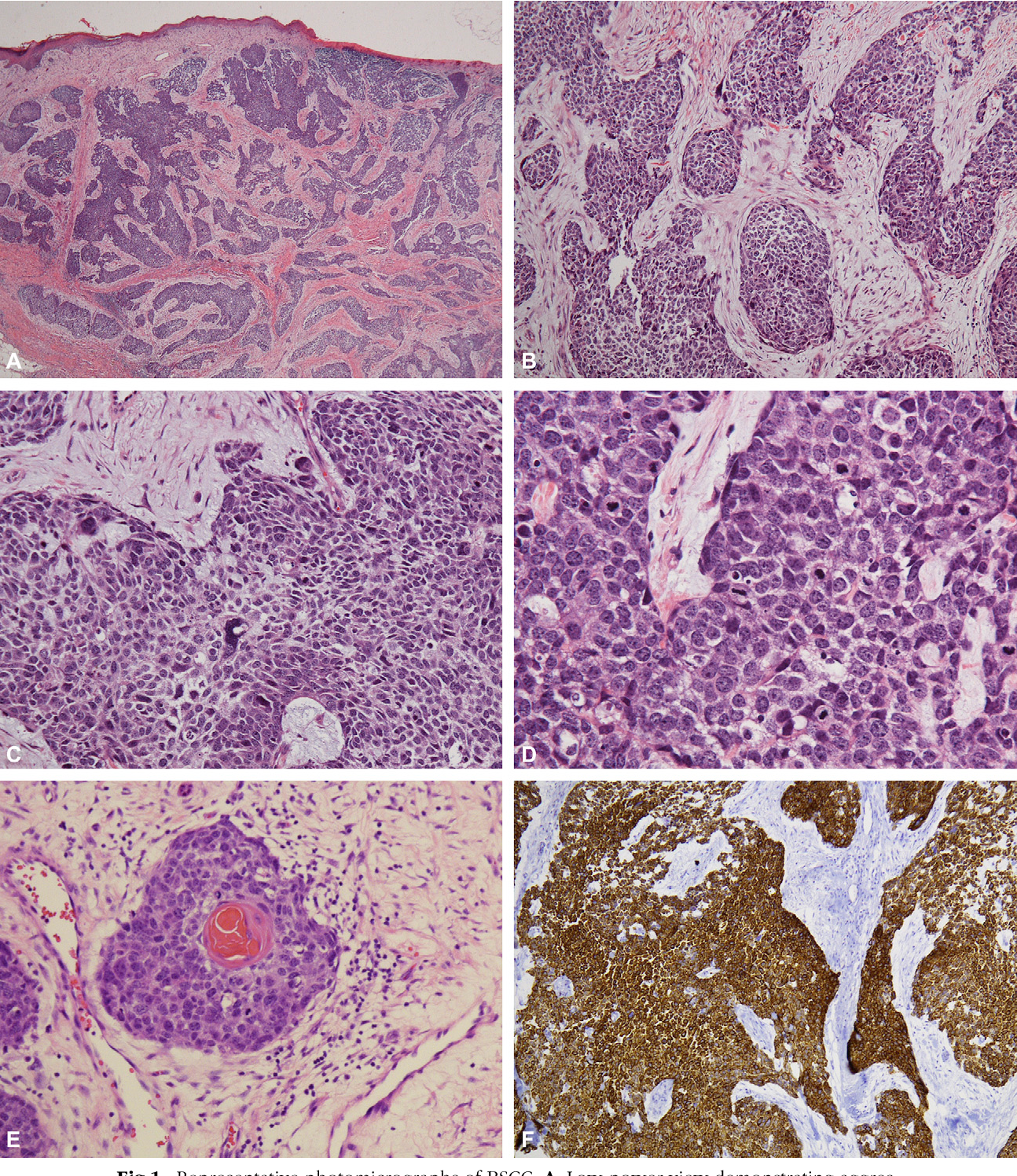hpv basaloid squamous cell carcinoma