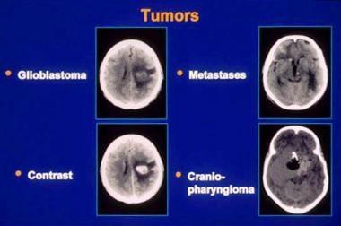 ovarian cancer or pcos cancer cervico uterino por papiloma humano