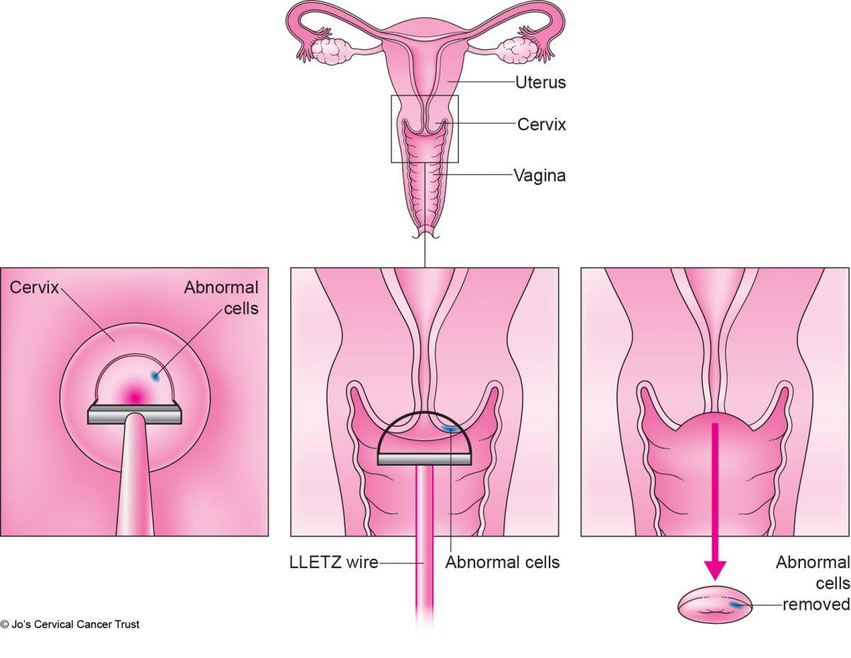 hpv cervical removal cancer de prostata sintomas y signos iniciales