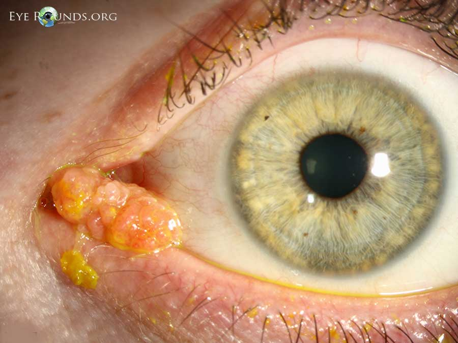 hpv conjunctival papilloma should intraductal papillomas be removed