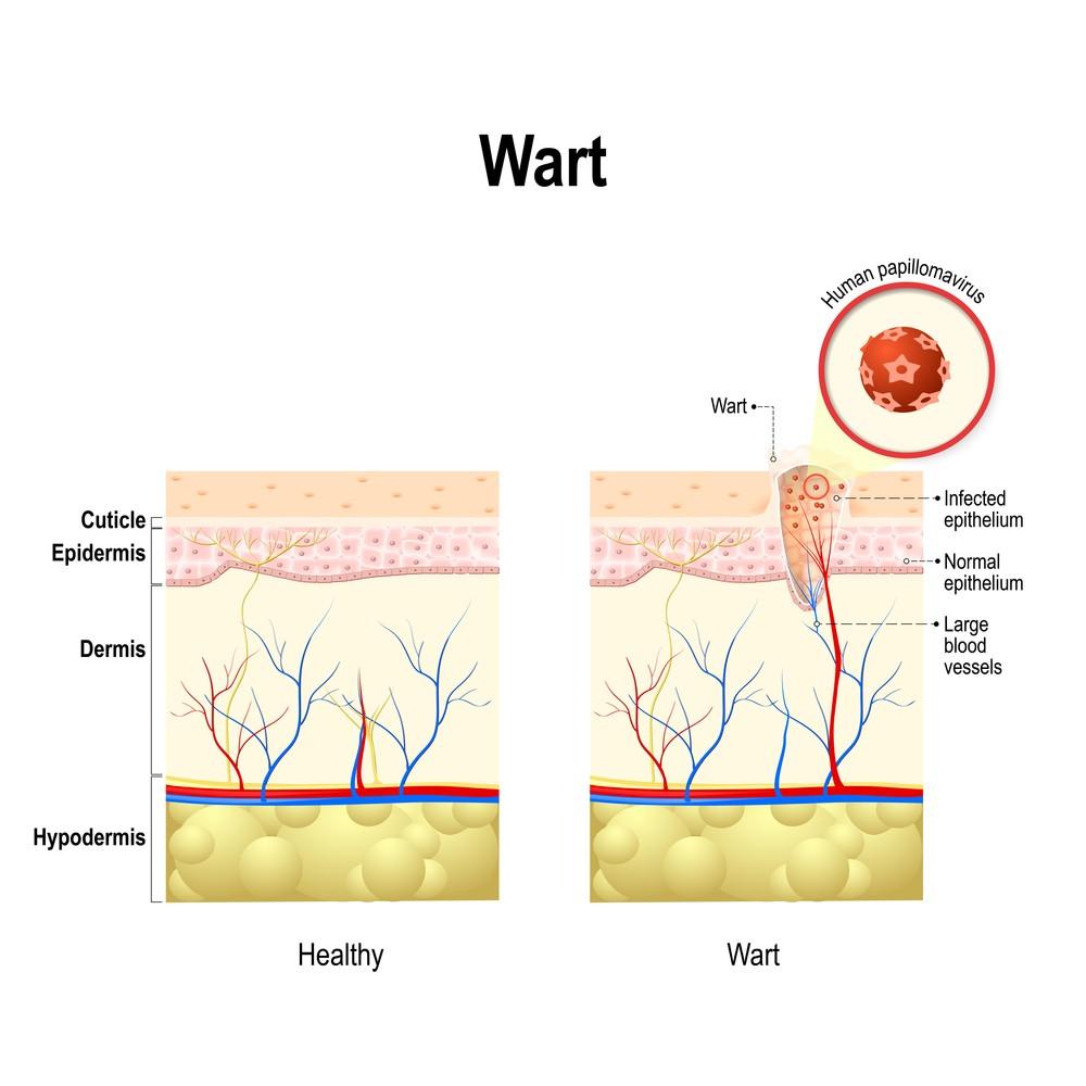 hpv genital strains