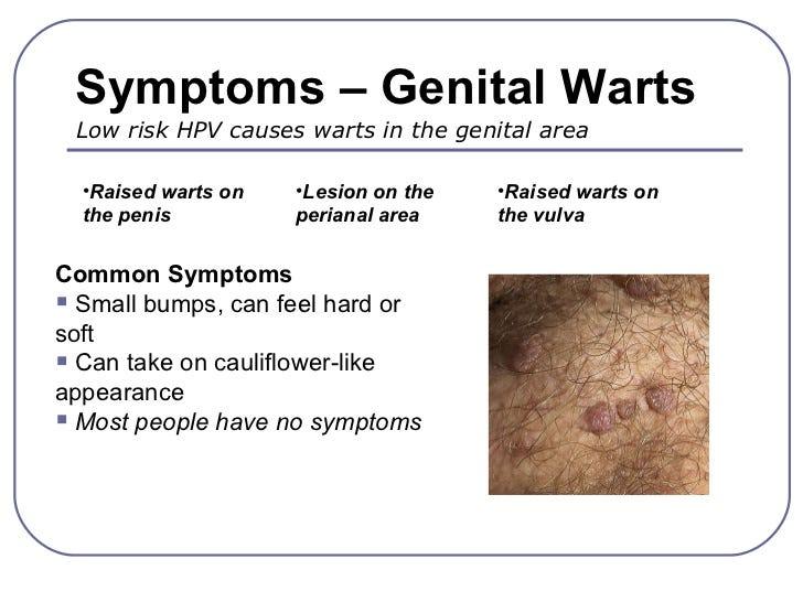 virus de papiloma humano provoca verrugas hpv treatment topical