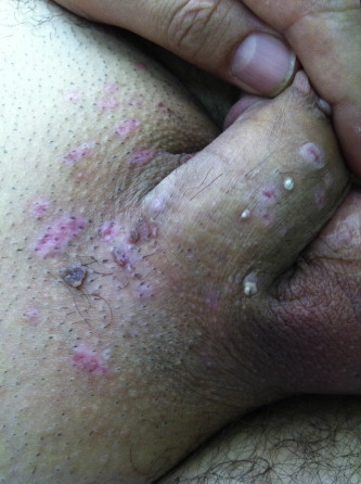 cura detoxifiere slabire virus del papiloma humano biologia molecular
