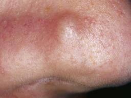 human papillomavirus infection latency squamous papilloma nose