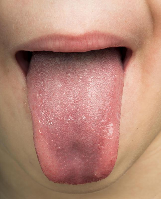 juvenile intraductal papilloma el papiloma se transmite por la saliva