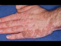 genital human papillomavirus symptoms virus papiloma humano foro