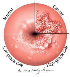 human papillomavirus is the causative agent for