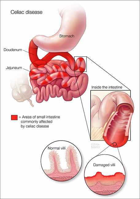 intestinal cancer from celiac disease hpv virus symptoms nhs