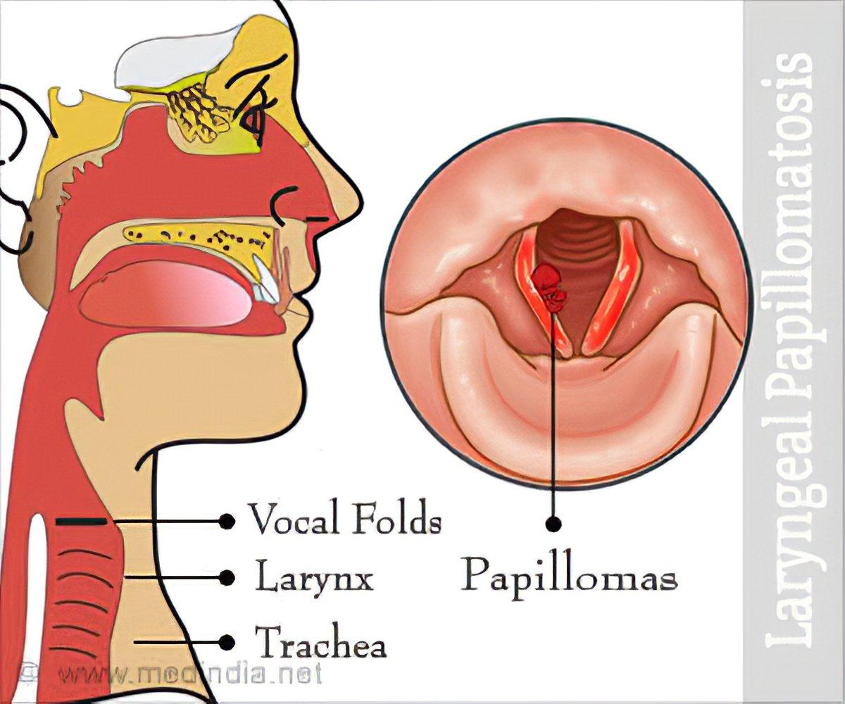 laryngeal papillomatosis infant anemie megaloblastica tratament