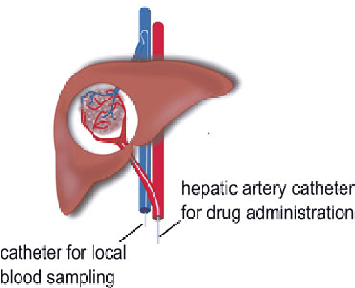 liver cancer hepatic vein