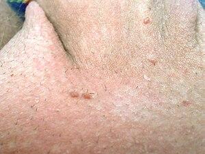 nasal papilloma hpv