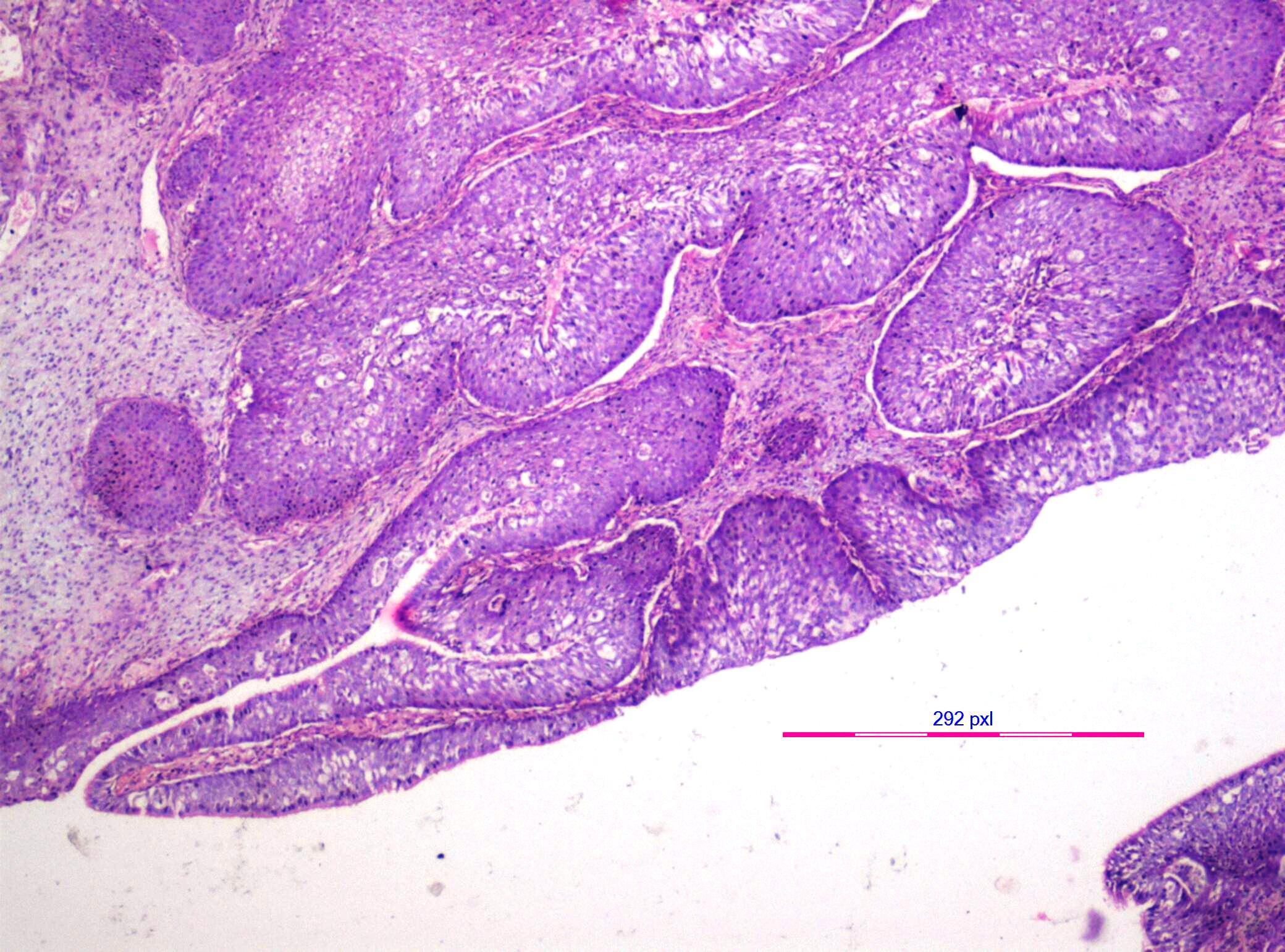 nasal papilloma malignant