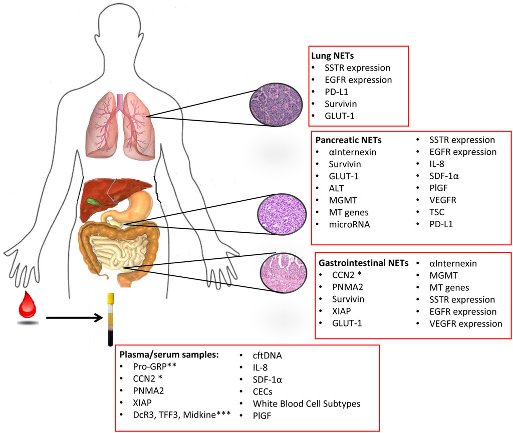 neuroendocrine cancer head and neck paraziti u ljudskom telu