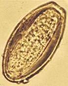 oxyuris equi huevos tratament ptr oxiuri copii