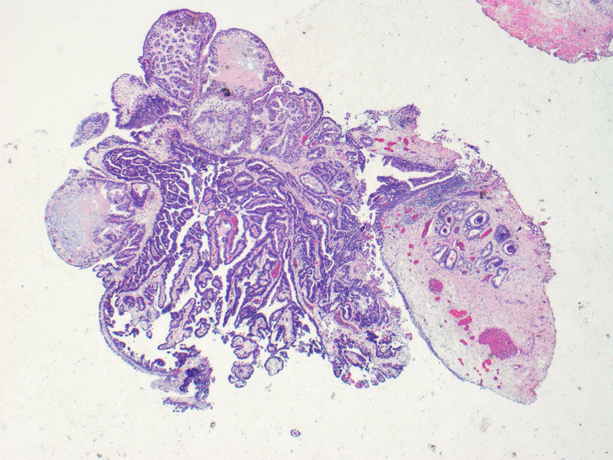 papillary lesion prostate is hpv throat cancer rare