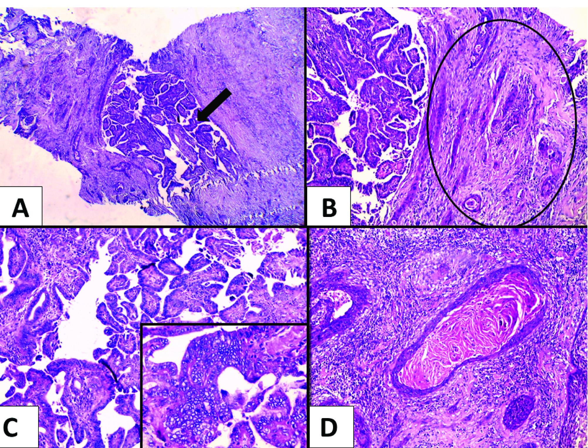 foot wart virus difference between human papillomavirus and cancer