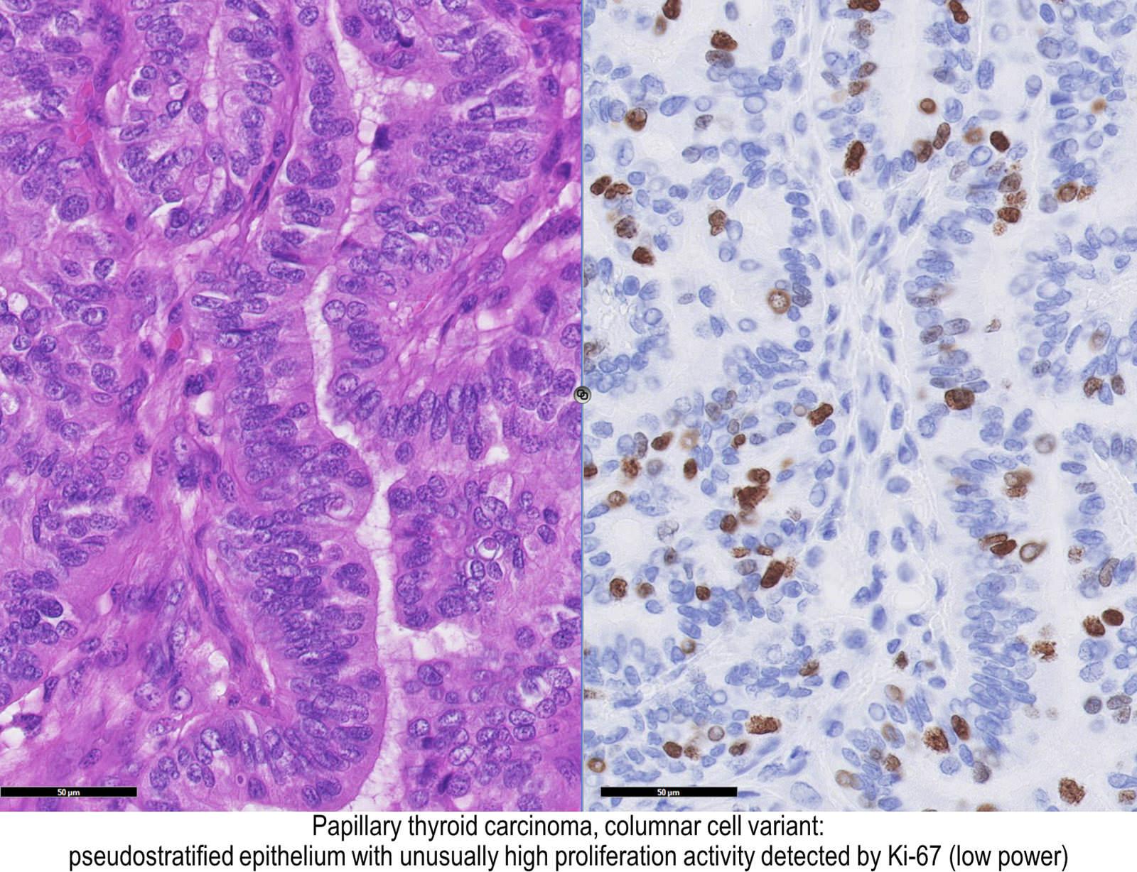 papillary thyroid carcinoma variants pathology outlines