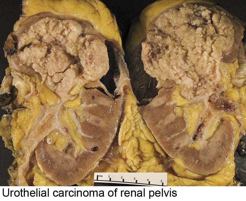 papillary urothelial carcinoma of renal pelvis cancer malign la ochi