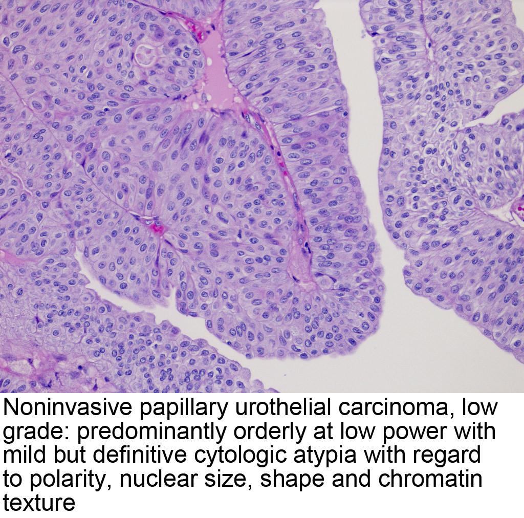 papillary urothelial carcinoma pathology outline