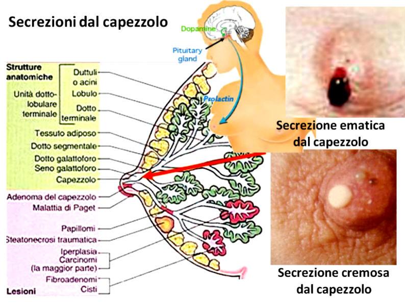 papilloma al seno sintomi