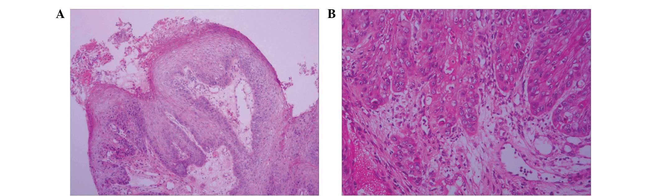 bowel cancer hepatic flexure