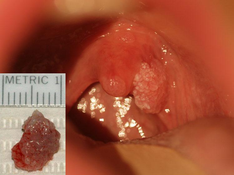 papilloma da uvula bacterii cu transmitere sexuala