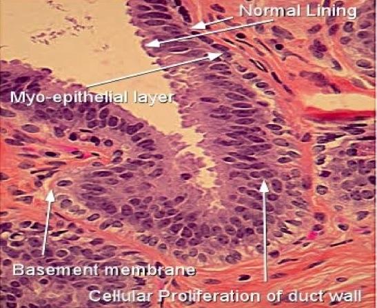papilloma ductal hyperplasia neuroendocrine cancer pathology outlines